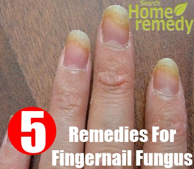 Top 5 Herbal Remedies For Fingernail Fungus