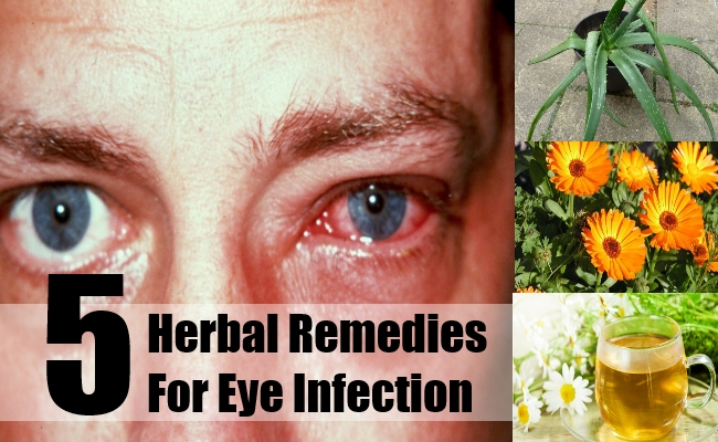 Herbal Remedies For Eye Infection