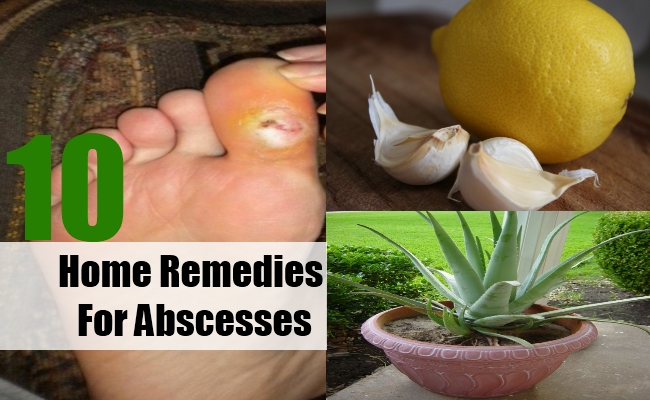 Home Remedies For Abscesses
