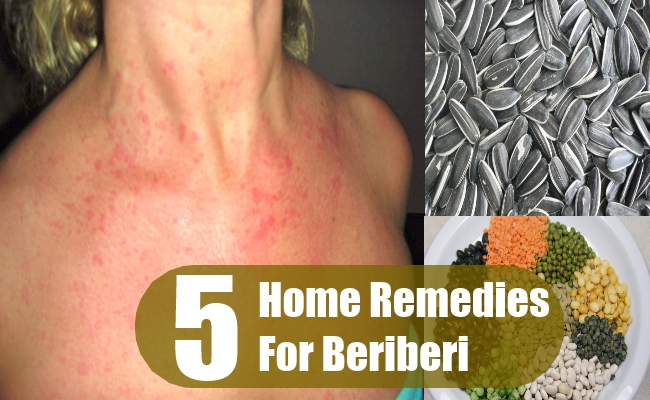 Home Remedies For Beriberi