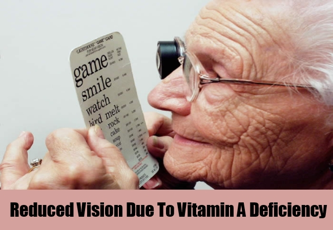 Reduced Vision Due To Vitamin A Deficiency