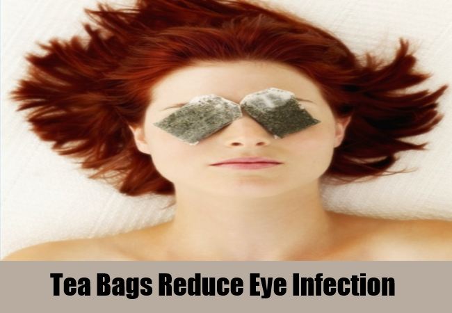 Tea Bags Reduce Eye Infection