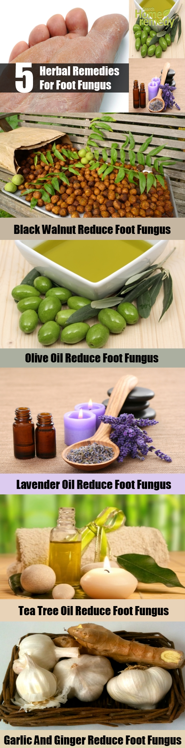 Top 5 Herbal Remedies For Foot Fungus