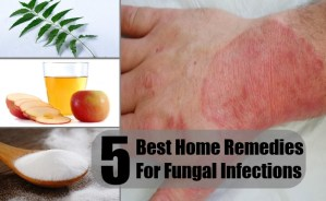 5 Best Home Remedies For Fungal Infections