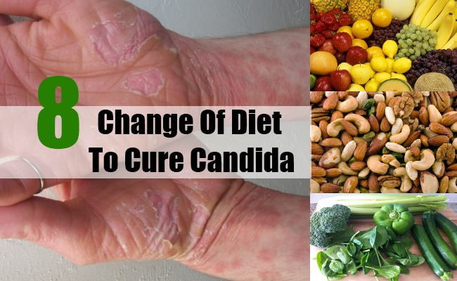 Change Of Diet To Cure Candida