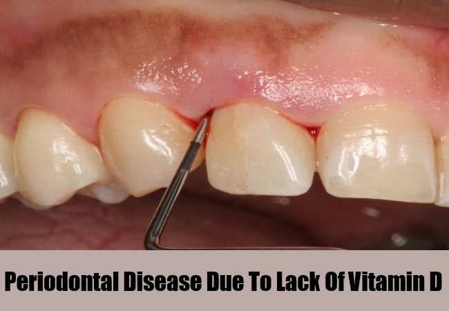 Periodontal Disease Due To Lack Of Vitamin D