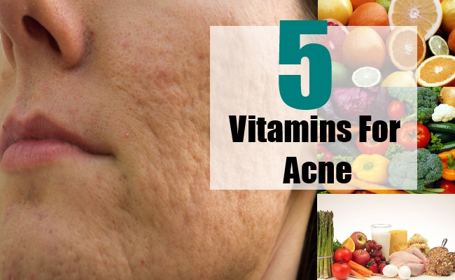 Vitamins For Acne