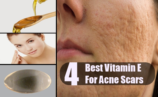 4 Vitamin E For Acne Scars