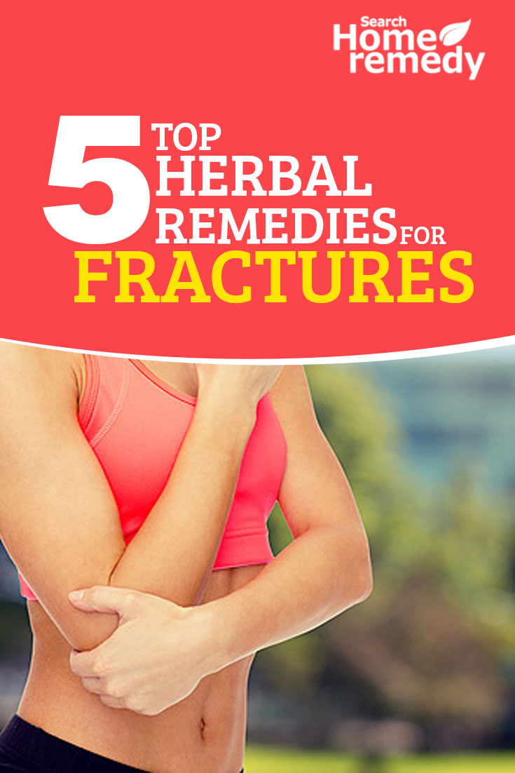 5-top-herbal-remedies-for-fractures