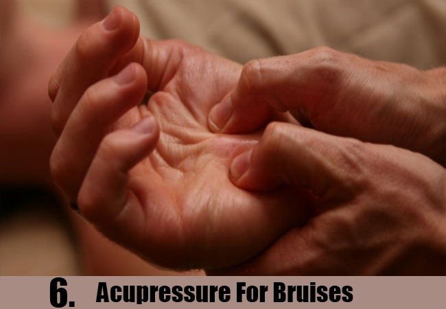 Acupressure For Bruises