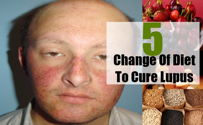 Change Of Diet To Cure Lupus