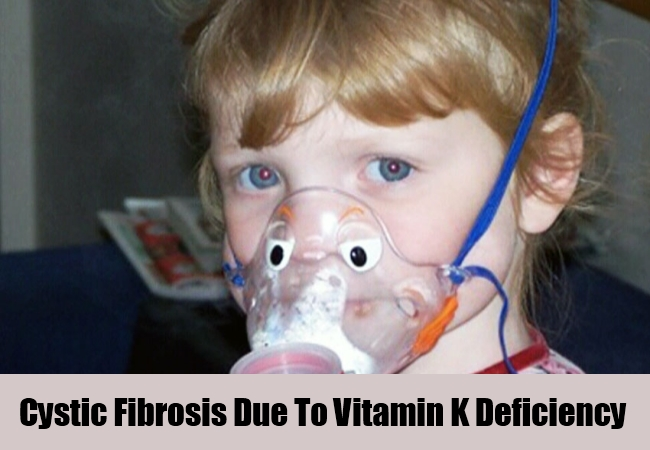 Cystic Fibrosis Due To Vitamin K Deficiency