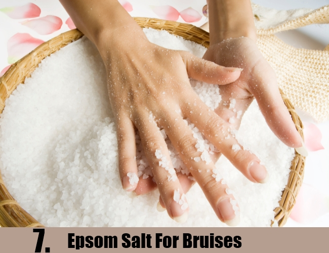 Epsom Salt For Bruises