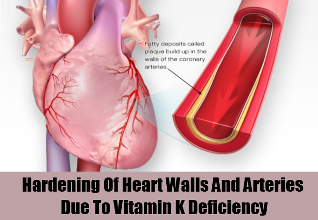 Hardening Of Heart Walls And Arteries Due To Vitamin K Deficiency