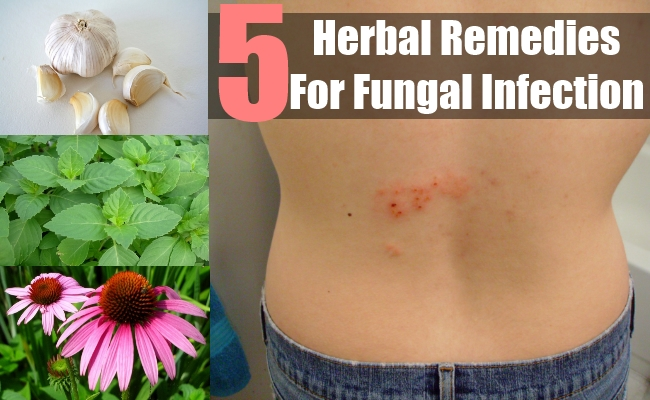 Herbal Remedies For Fungal Infection