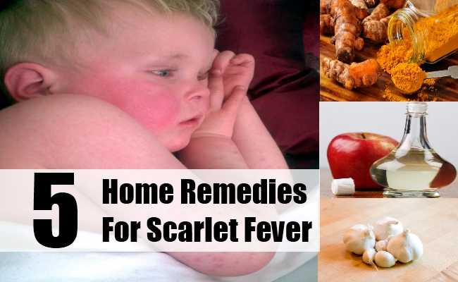 Home Remedies For Scarlet Fever
