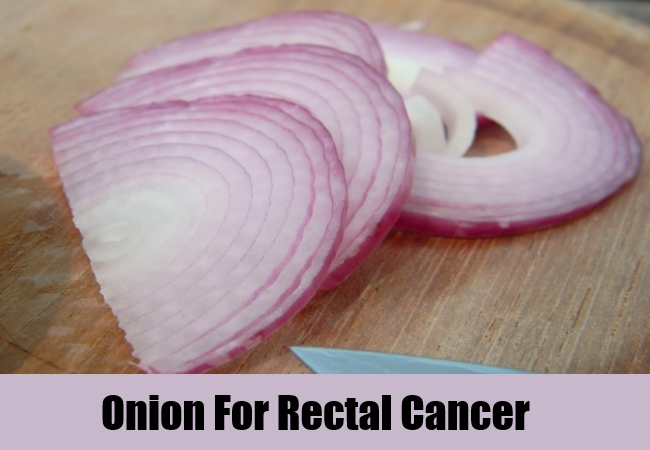 Onion For Rectal Cancer