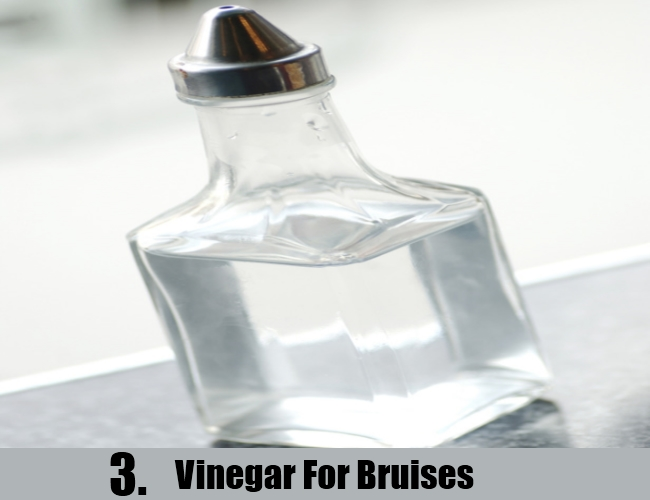 Vinegar For Bruises