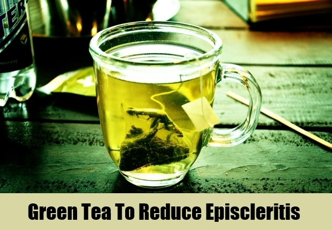 Green Tea To Reduce Episcleritis