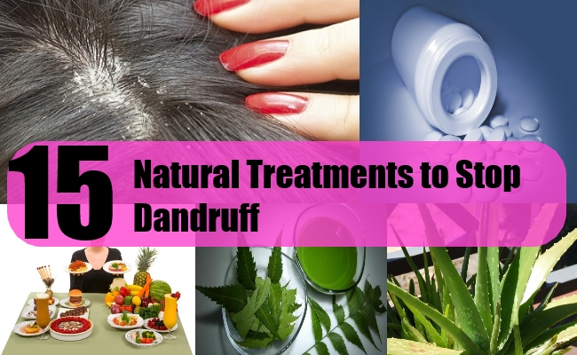 15 Natural Treatments to Stop Dandruff