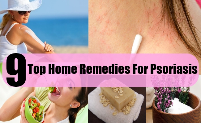 9 Top Home Remedies For Psoriasis | Search Home Remedy