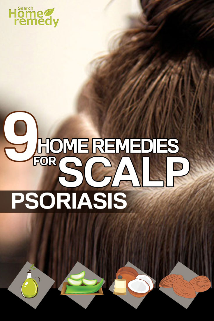 9-home-remedies-for-scalp-psoriasis