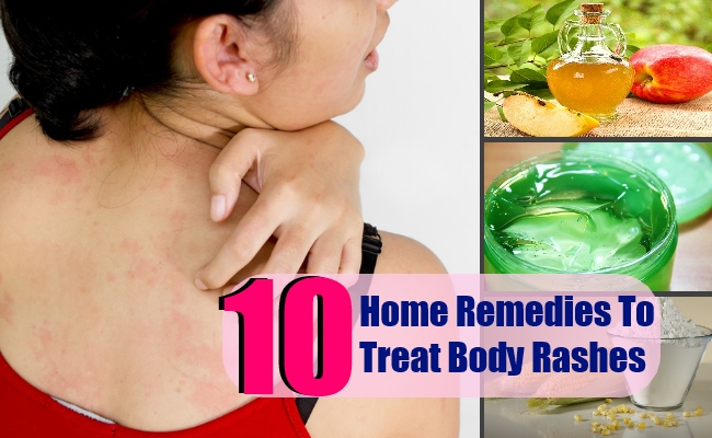 10 Home Remedies To Treat Body Rashes