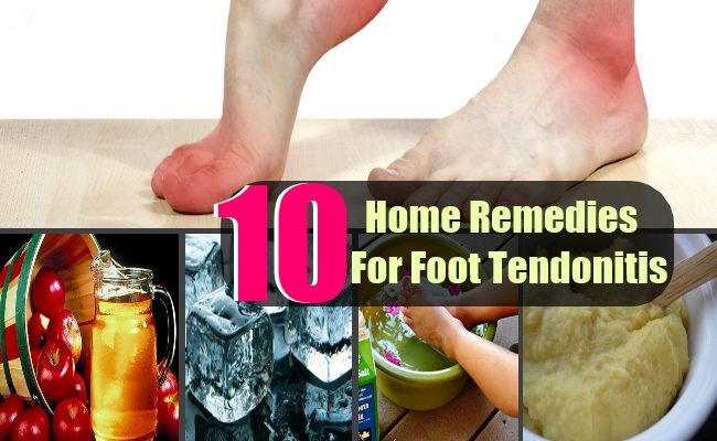 10 Top Home Remedies For Foot Tendonitis