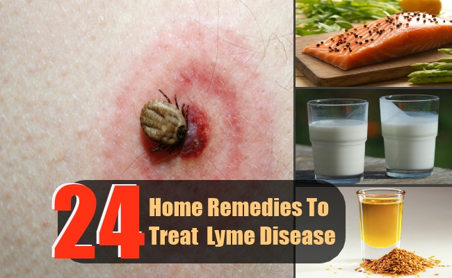 24 Effective Home Remedies To Treat  Lyme Disease