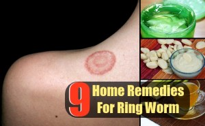 9 Top Home Remedies For Ring Worm
