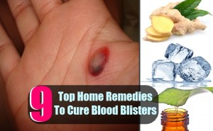 9 Top Home Remedies To Cure Blood Blisters