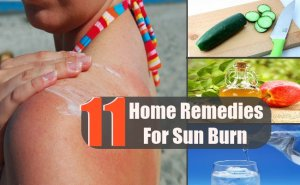 11 Easy And Effective Home Remedies For Sun Burn