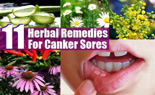 Remedies For Canker Sores