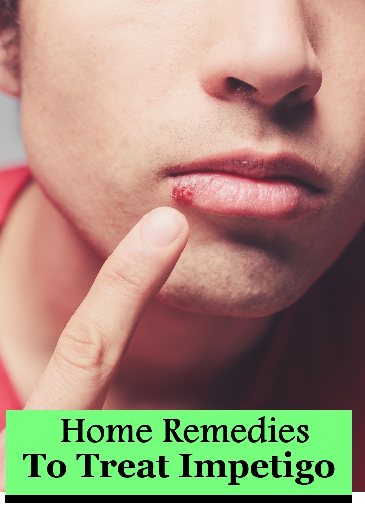 Top 6 Home Remedies To Treat Impetigo