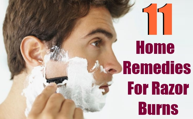 11 Home Remedies For Razor Burns