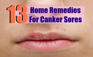 13 Home Remedies For Canker Sores