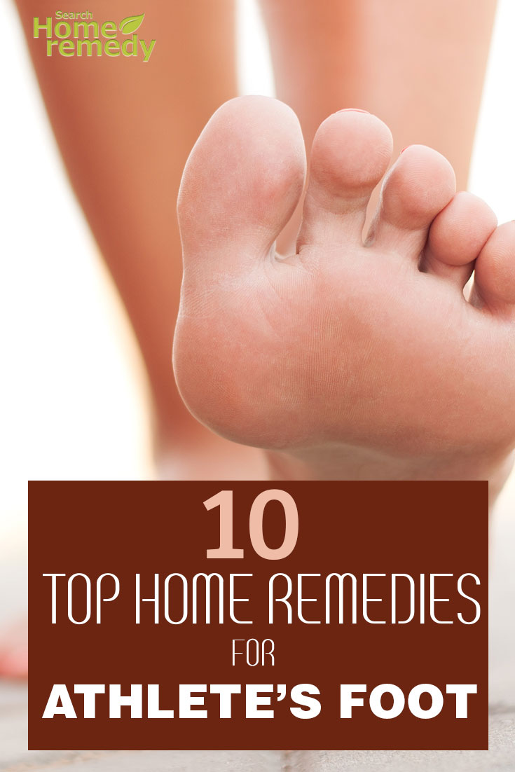 10-top-home-remedies-for-athletes-foot