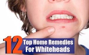 12 Top Home Remedies For Whiteheads