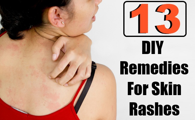 13 DIY Remedies For Skin Rashes