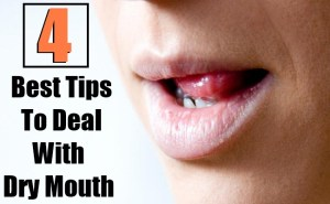 4 Best Tips To Deal With Dry Mouth