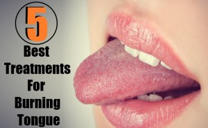 5 Best Home Remedies For Burning Tongue