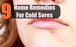 9 Best Home Remedies For Cold Sores