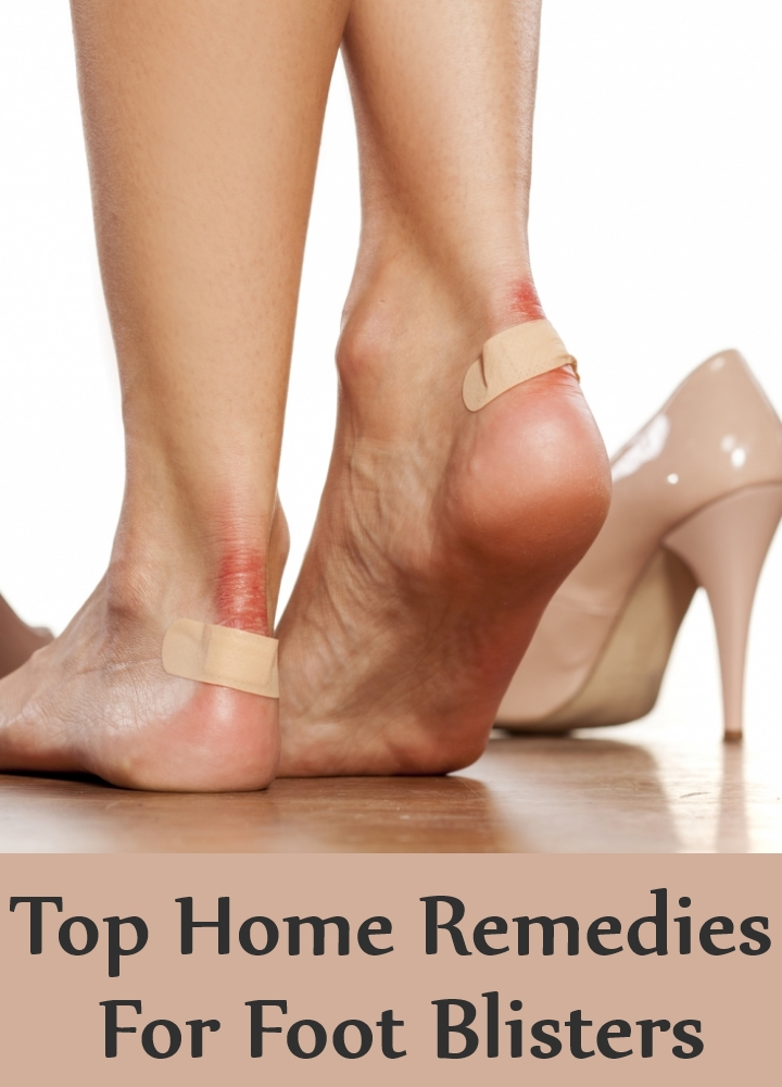 Top Home Remedies For Foot Blisters