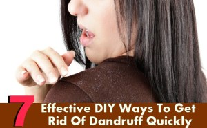 7 Effective DIY Ways To Get Rid Of Dandruff Quickly