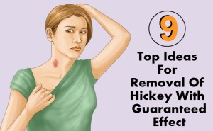 9 Top Ideas For Removal Of Hickey With Guaranteed Effect