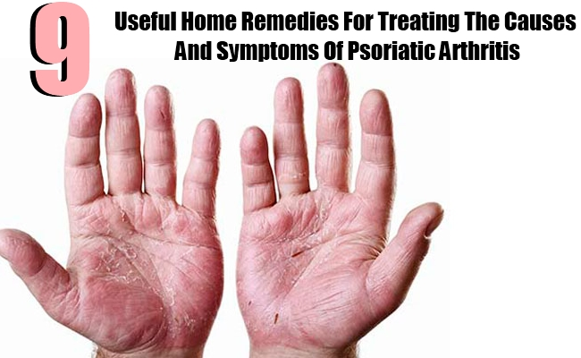 9 Useful Home Remedies For Treating The Causes And Symptoms Of Psoriatic Arthritis