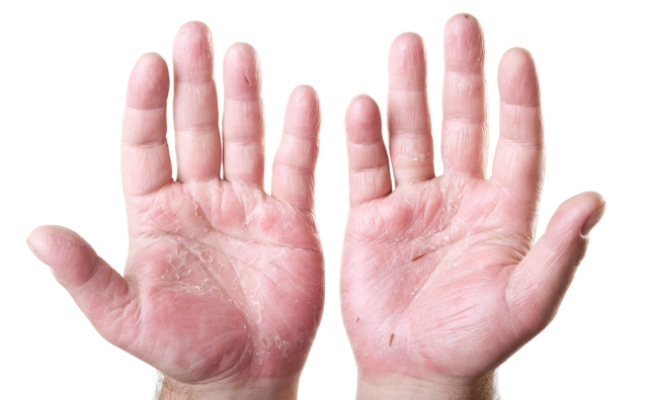5 Easy Home Remedies Of Skin Cracks