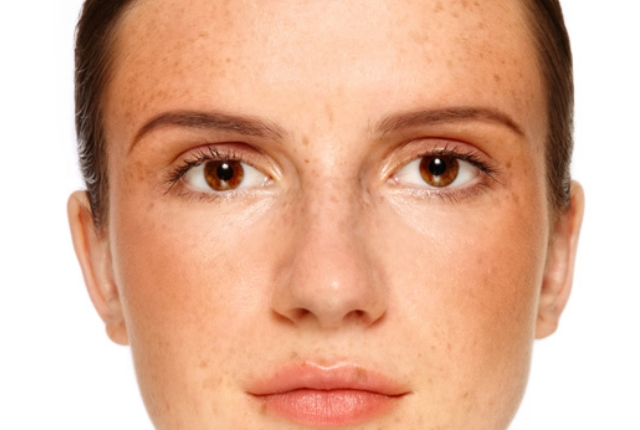 5 Easy Ways To Use Avocado For Skin Pigmentation