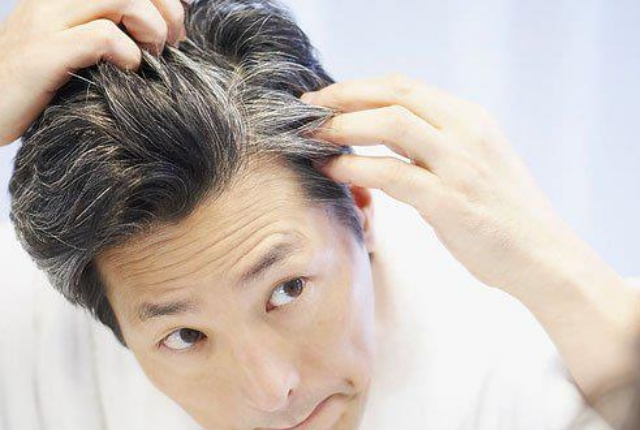 Controls Graying Of Hair