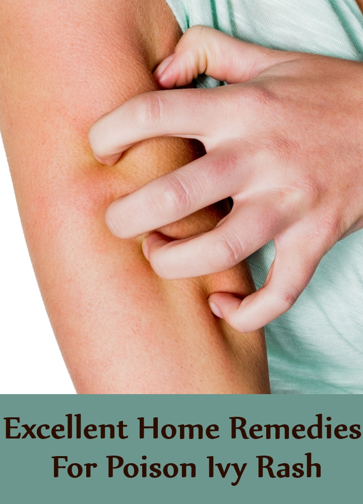 Excellent Home Remedies For Poison Ivy Rash